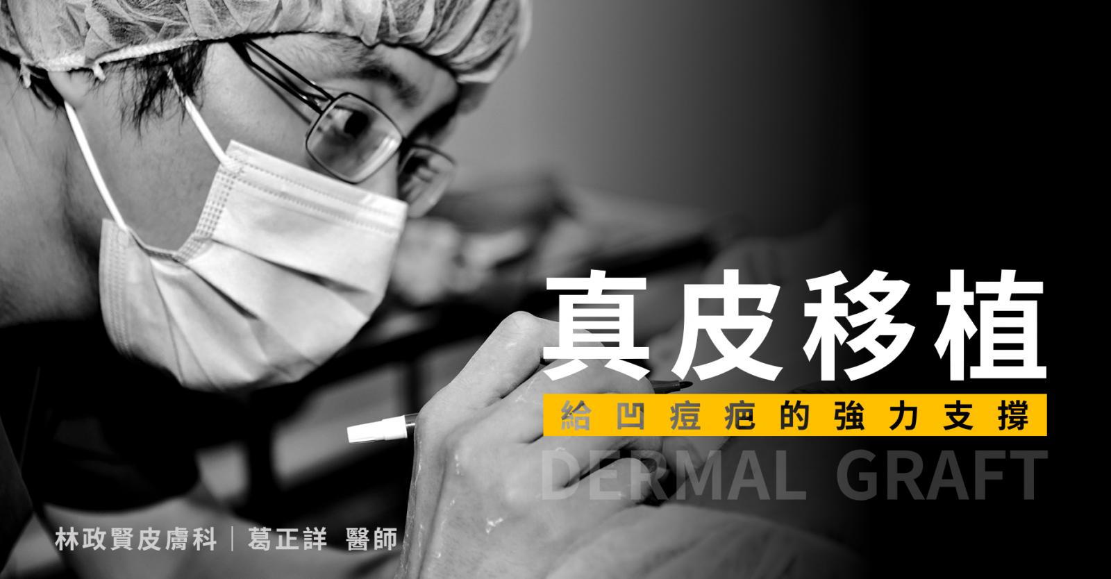 凹痘疤,痘疤坑洞,真皮移植手術,月球表面,葛正詳醫師,高雄林政賢皮膚科診所
